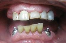 Dentist Oakville General And Family Dentistry Oakville