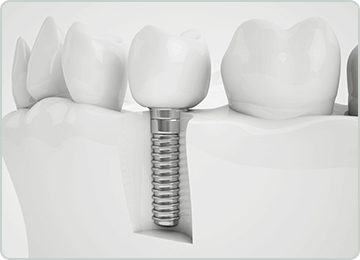 Dentist Oakville - Burloak Centre Dentistry - Dental Implants