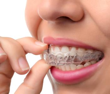 Invisible Braces from Dentist in Oakville ON